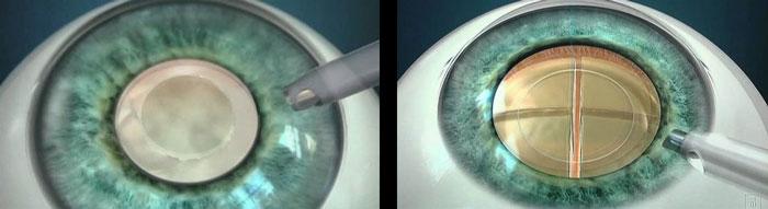 katarakt ameliyatı nasıl yapılır