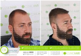 clinic hair saç ekimi merkezi
