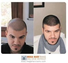 mega hairtrans saç ekimi merkezi