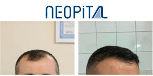 Neopital saç ekimi ve estetik merkezi