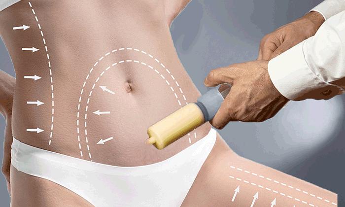 Liposuction Fiyatları 2020 Listesi ve En İyi Liposuction Klinikleri