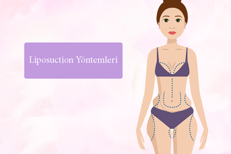 liposuction yöntemleri