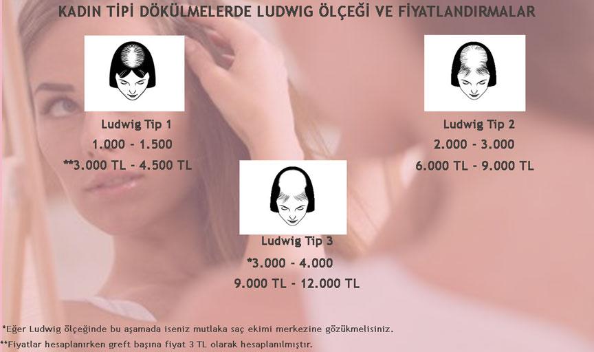 Ludwig Ölçeği ve Saç Ekimi Fiyatları