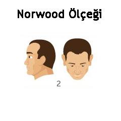 Norwood Ölçeği Tip 2