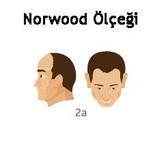Norwood Ölçeği Tip 2a