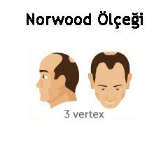 Norwood Ölçeği Tip 3 vertex