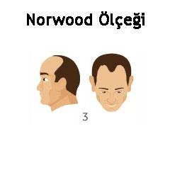 Norwood Ölçeği Tip 3