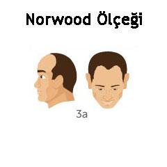 Norwood Ölçeği Tip 3a
