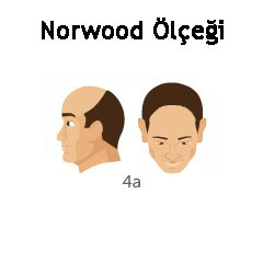 Norwood Ölçeği Tip 4a