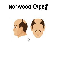 Norwood Ölçeği Tip 5