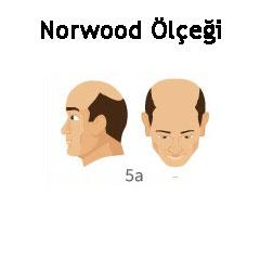 Norwood Ölçeği Tip 5a