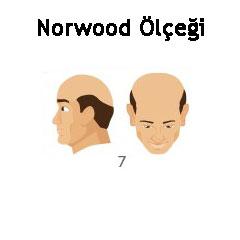 Norwood Ölçeği Tip 7