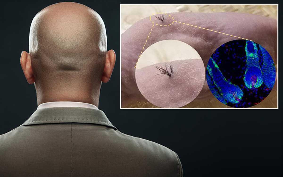 Organik Saç Ekimi Hakkında Bilinmeyen Gerçekler